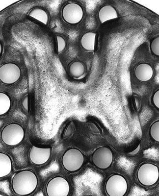 Implante impreso en 3D para lesiones de médula espinal