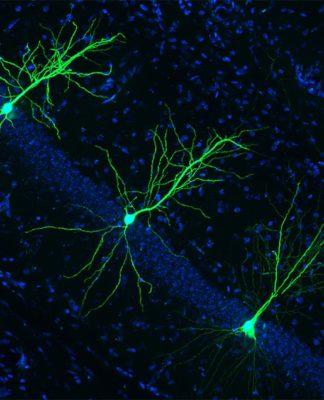 La supresión de una nueva enzima podría prevenir y combatir el Alzheimer