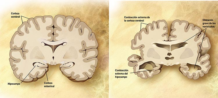 Alzheimer: fisiología