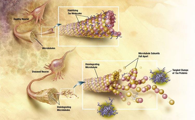 Alzheimer: terapia de ultrasonidos