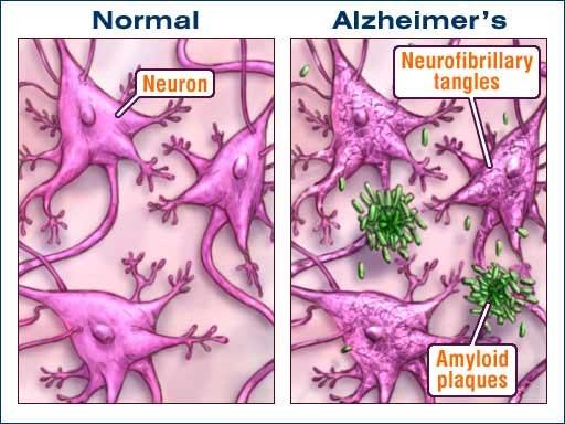 Alzheimer: las placas amiloides