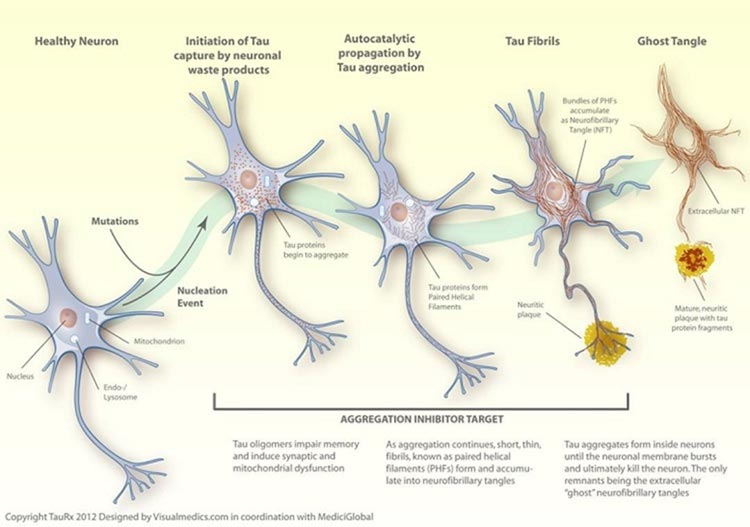 Alzheimer: proteínas tau