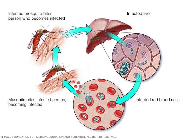 Ciclo de la infección por malaria