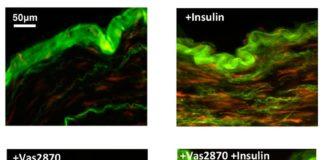 Imágenes teñidas de producción de oxígeno (rojo) en respuesta al tratamiento con insulina en el tejido de los vasos sanguíneos