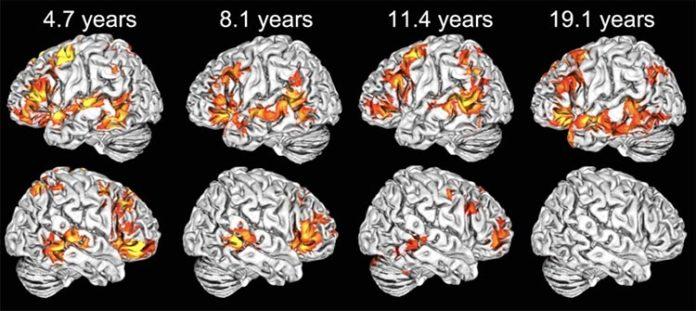 Ejemplos de mapas de activación cerebral individuales en cada uno de los grupos de edad en respuesta al lenguaje