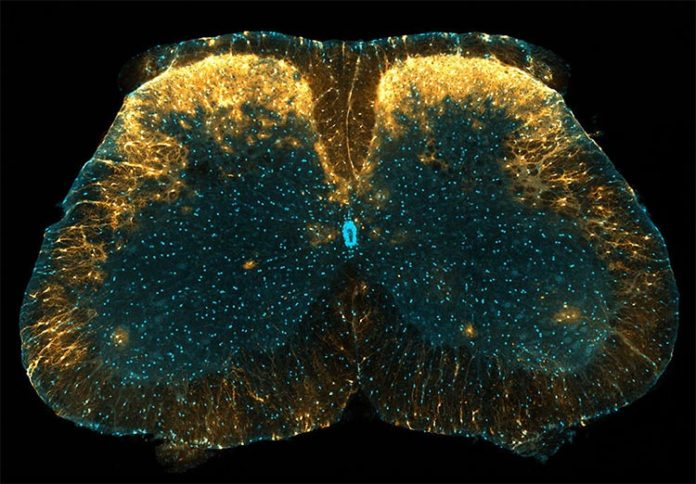 Marcada con amarillo concentrado en la imagen, se ha descubierto que una población única de astrocitos en el cuerno dorsal de la médula espinal del ratón juega un papel en el control del dolor