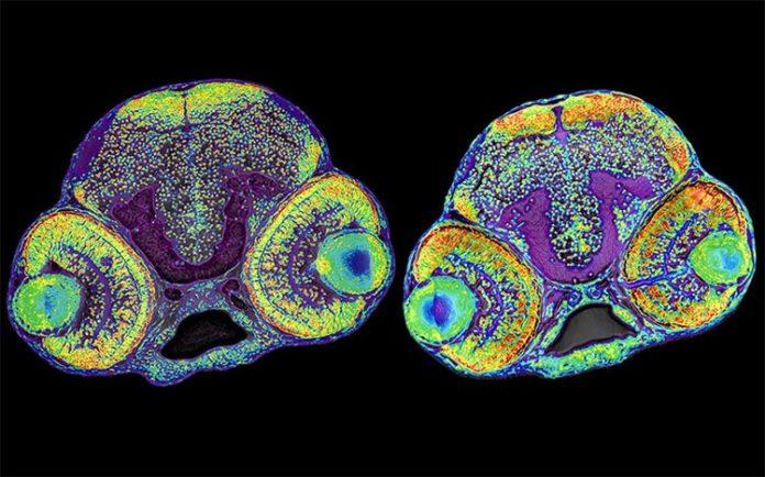 La imagen muestra el cerebro de una larva normal de pez cebra (izquierda) y una larva con microcefalia (derecha)