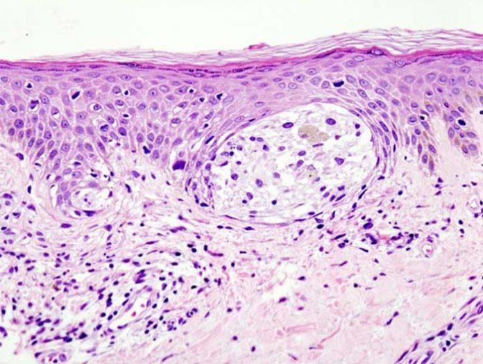 Cáncer de piel: Melanoma en biopsia de piel con tinción