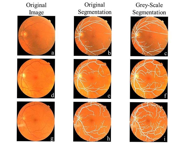 Comparación de la segmentación del vaso a partir de la imagen de entrada para diagnosticar Parkinson