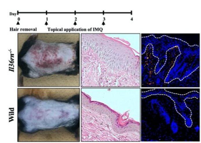 Investigación sobre la psoriasis en ratones