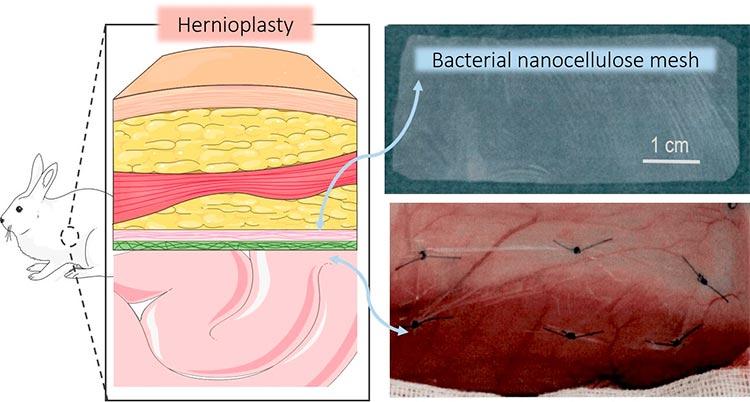 Hernias: pruebas de mallas quirúrgicas de nanocelulosa bacteriana en estudios in vivo para suturar heridas de la pared abdominal en conejos