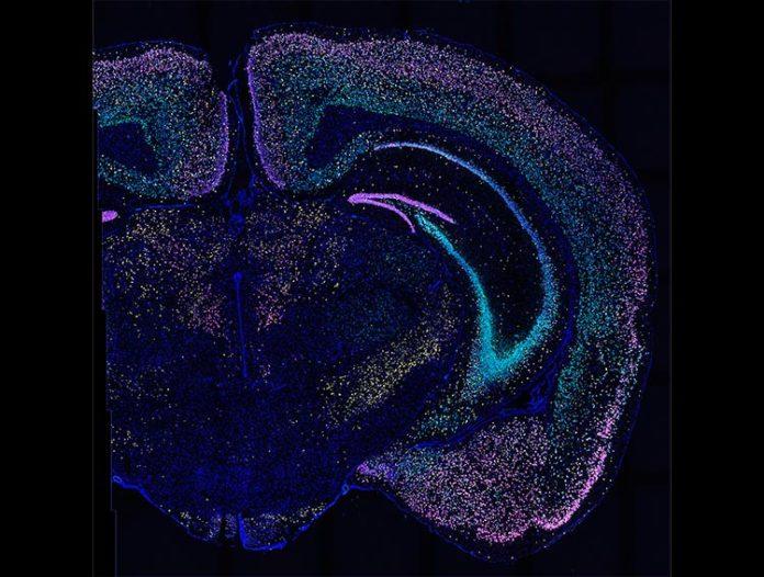 BARseq2 detecta docenas de genes en miles de neuronas en este corte de cerebro de ratón. Cada color ilumina un conjunto diferente de genes