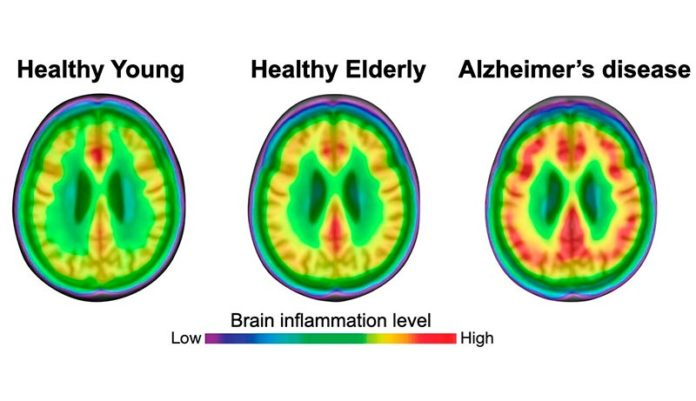 Tanto las personas jóvenes como las de edad avanzada tienen un menor grado de neuroinflamación (rojo) que los pacientes con enfermedad de Alzheimer