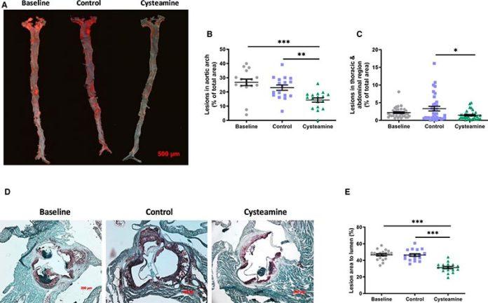 La cisteamina redujo la arterioesclerosis existente en ratones deficientes en receptores de lipoproteínas de baja densidad