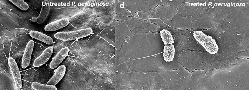 A la izquierda, una célula bacteriana de P. aeruginosa antes de la exposición al hidrogel dendrítico y luego mostrando un daño evidente